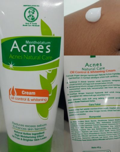 Acnes Oil Control and Whitening Cream